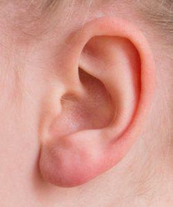 Tinnitus Tinutus Hören Ohr Geräusche Klingeln